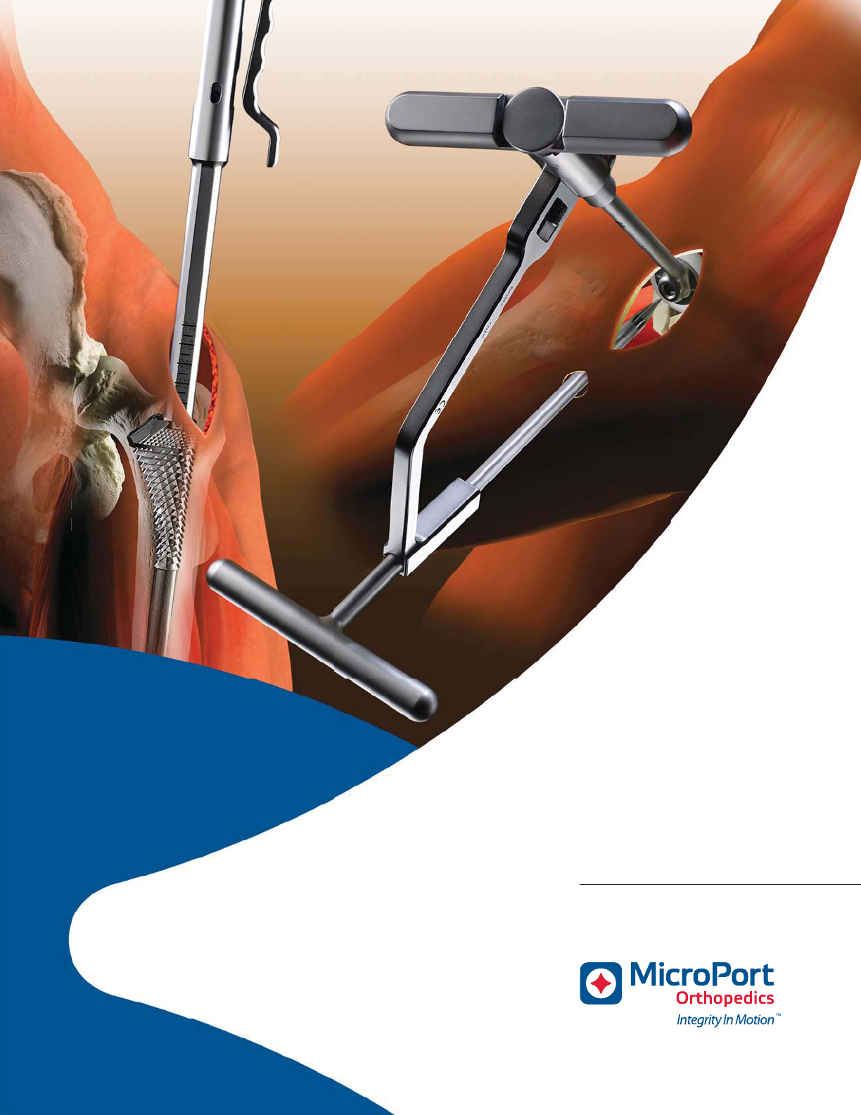 009378 MicroPort SuperPATH Surgical Technique_2 Super Path