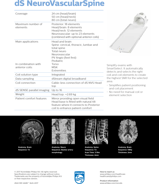 Philips NMRB918 User Manual D Stream Neuro Vascular Spine Coil ...